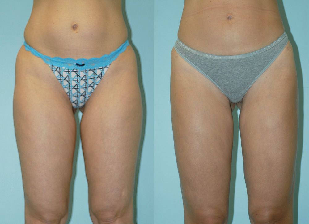 liposuction1